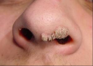 """Verrugas en forma de """"deditos"""""""