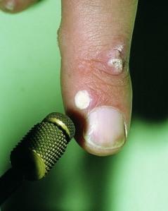 Uso de Nitrogeno para tratar verrugas