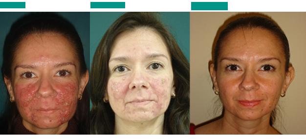Tratamiento con ISOTRETINOINA ORAL para el acne  DERMATOLOGO EN LOS CABOS BCS # Wasbak Zit Los_081955