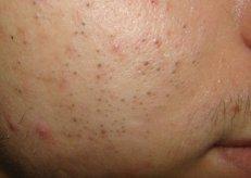 acne comedonico
