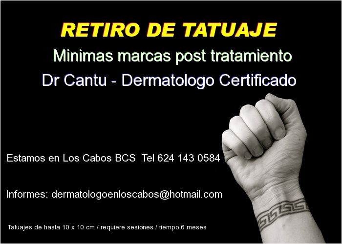 remover tatuajes