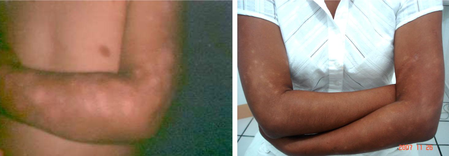 El programa malyshevoy sobre la psoriasis del vídeo