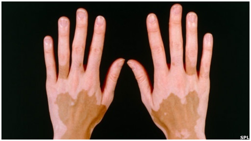 Las manchas blancas de pigmento en el cuerpo de la causa de la aparición