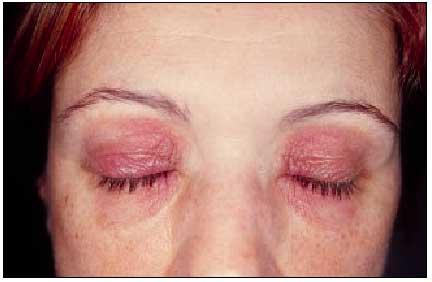 dermatitis seborrreica