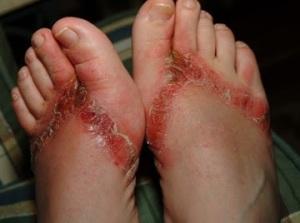 dermatitis de contacto pies