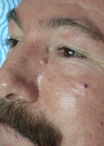basal cell carcinoma dr cantu