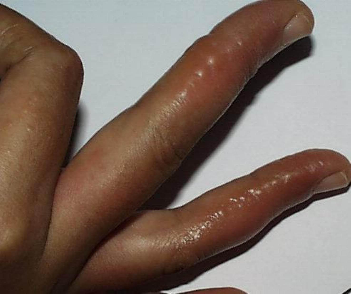 191ampollas en las manos o en los pies � dermatologo en los