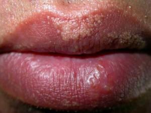 manchas amarillas en labios