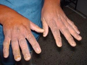 La enfermedad la psoriasis que este tal y como es curado