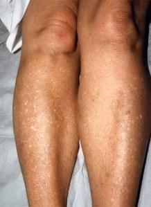hipo melanosis en gotas