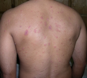 pitiriasis dermatologo