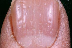 finger nail pitting - nail psoriasis