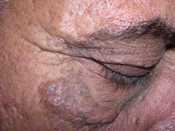 Favre-Racouchot enfermedad