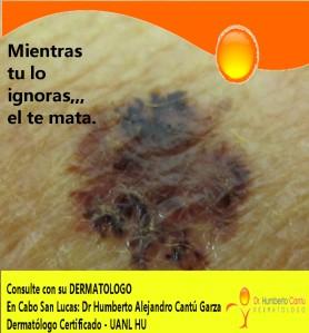 piel cancer