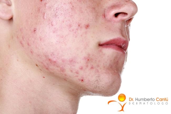 efectos-adversos-tratamiento acne