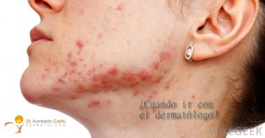 Del sodio tiosulfat al acné