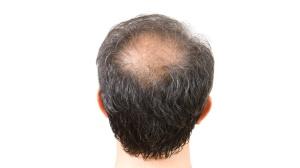 caida de pelo