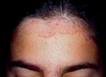 cabeza-dermatitis-seborreica