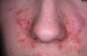 dermatitis-seborreica