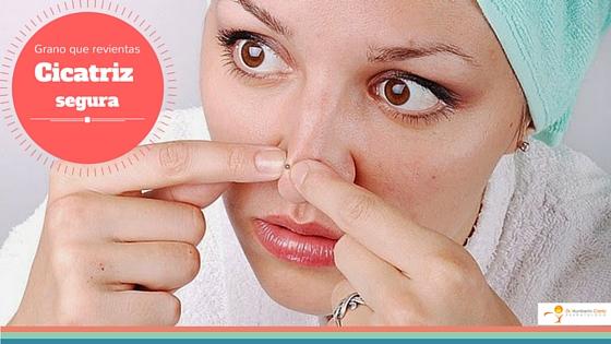 acne_los_cabos