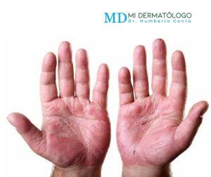 irritacion manos